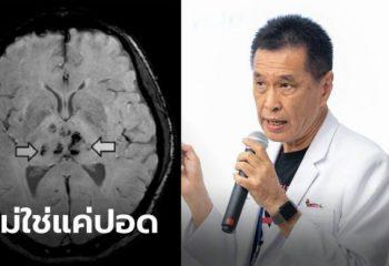"""<span>""""หมอธีระวัฒน์"""" เผยเชื้อโควิด-19 ไม่ได้ทำร้ายแค่ปอด มีผลต่อสมอง-หัวใจด้วย</span>"""